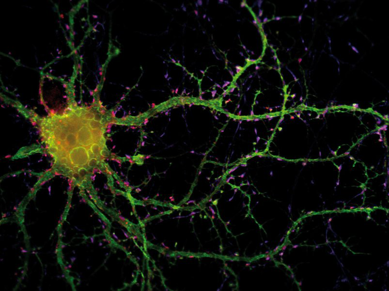 Neuron_photo